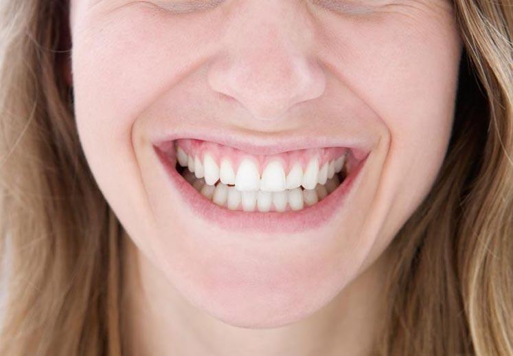 odontoiatria estetica e cosmetica