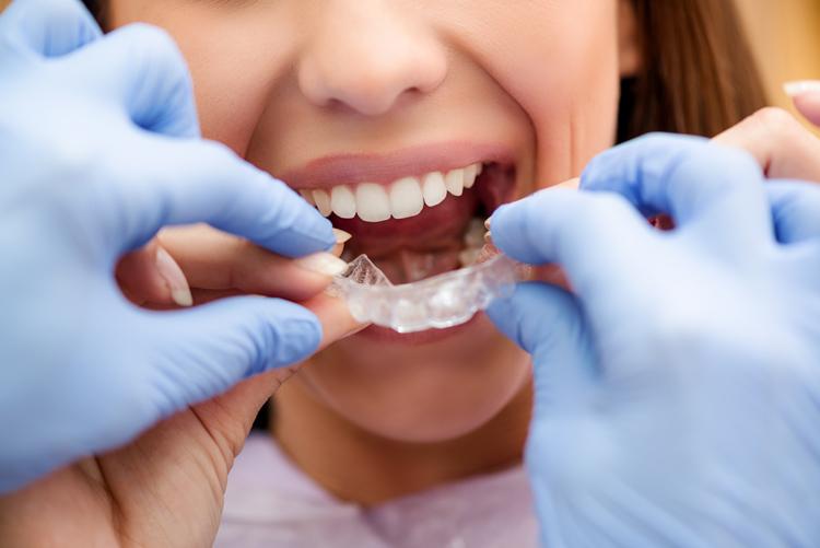apparecchio denti invisibile