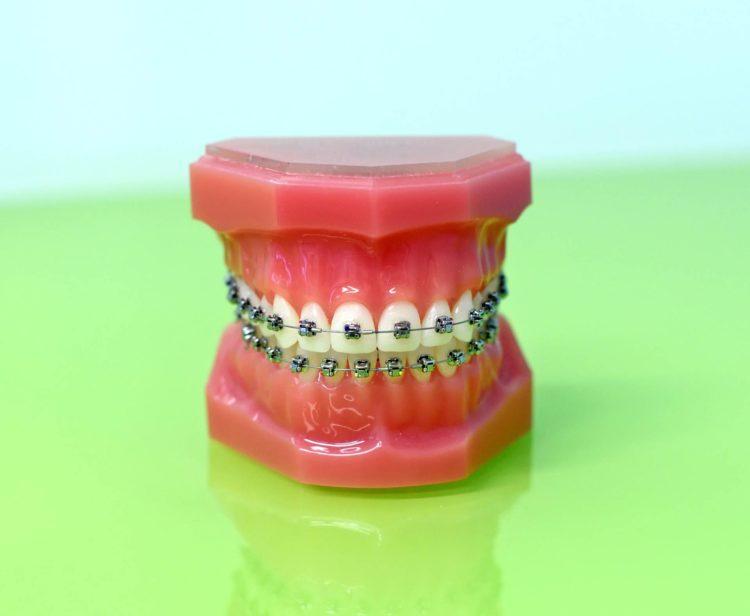 apparecchio denti brescia