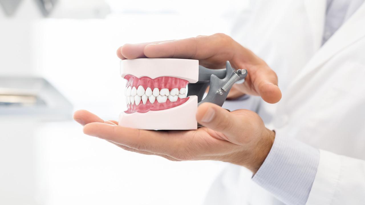 malocclusione dentale